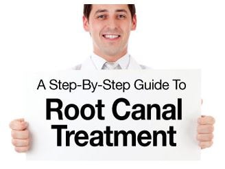 Root Canel Treatment Step By Step Guide